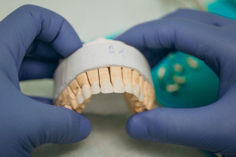 zobna protetika cena